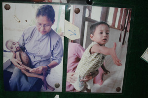 Sister Martha with a sick child, and that same child a few months later.